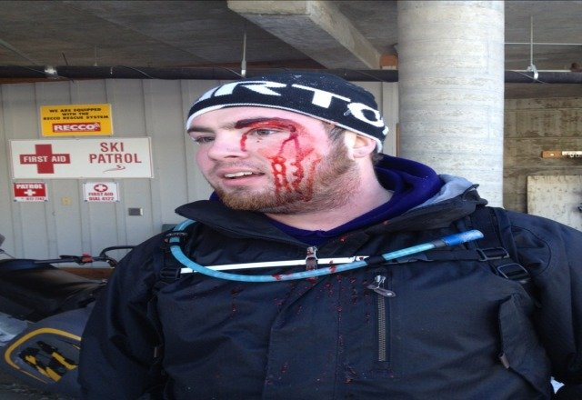 result of yesterdays boarding trip. this is what happens when you avoid little kid skiers.